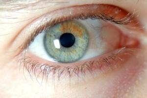 Sectoral Heterochromia Iridis.